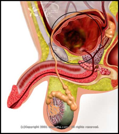 excretory system diseases. A part of the excretory system